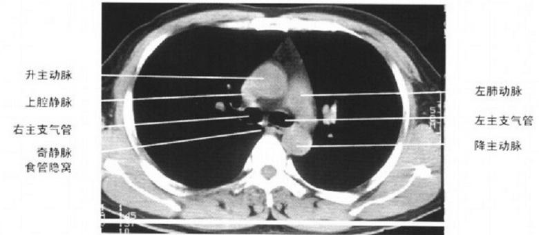 纵隔CT解剖图谱 影像论坛第三期教育 科研教育 寿县县医院