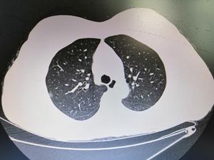 患者,女,51岁,体检发现右肺结节,胸部CT:右肺上叶胸膜下磨玻璃结节 大小9.6乘以6.6mm, 考虑结节为磨玻璃结节,直径大于8mm,需要积极干预,给予抗炎治疗2周,结节无变化。外院外科行手术治疗,病理提示微浸润腺癌。_副本.jpg